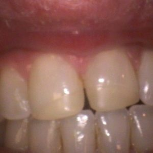 Smile Gallery Before 8 | Alluring Smiles - Mesa, AZ Dentist