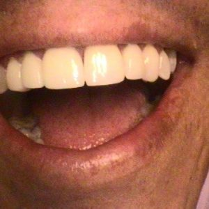 Gapped in Upper Middle Teeth Fixed - After Treatment | Alluring Smiles in Mesa, AZ - Dr. Javier Portocarrero