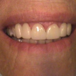 Smile Gallery After 7 | Alluring Smiles - Mesa, AZ Dentist