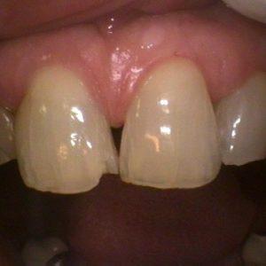 Worn Teeth - Before Treatment | Alluring Smiles in Mesa, AZ - Dr. Javier Portocarrero