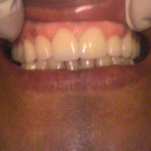Restored Worn Teeth - After Treatment | Alluring Smiles in Mesa, AZ - Dr. Javier Portocarrero