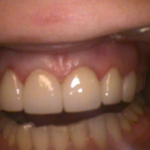 Fixed Cracked Teeth - After Treatment | Alluring Smiles in Mesa, AZ - Dr. Javier Portocarrero