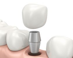 Dental Implants Parts | Alluring Smiles in Mesa, AZ - Dr. Javier Portocarrero